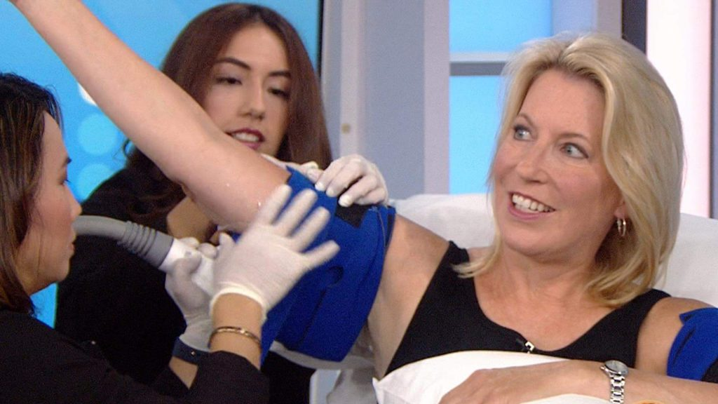 CoolSculpting for Arms